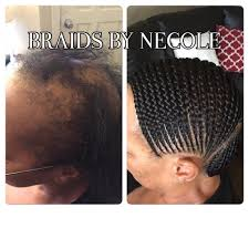 hairr styles for woman with alopica 14 extraordinary alopecia camouflage cornrows by braids by necole