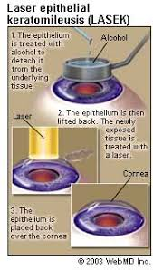 What Are The Chances Of Going Blind From Lasik Lasek Laser Eye Surgery
