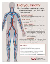 Foot Vascular Anatomy Six Diabetes Related Vascular Complications And How To Avoid