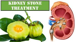 compound found in citrus fruit could end kidney stones kidney