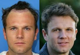 prescreened hair transplant physicians what is the success rate of a hair transplant and do i get a