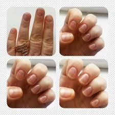 neostrata nail conditioning solution rachsbeautique