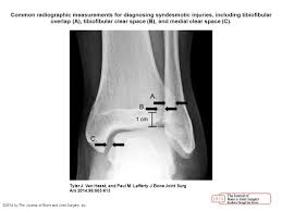 Tibiofibular Ligament Injury Injuries To The Ankle Syndesmosis Ppt Video Online Download