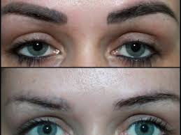 laser tattoo removal of semi permanent makeup and correctional