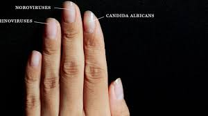 Candida And Hair Loss Here U0027s All The Disgusting Stuff That Grows Under Your Nails When