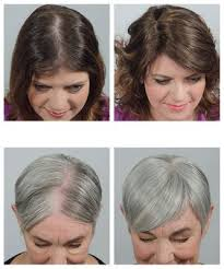 hair styles for thining hair on crown thinning hair extensions crown trendy hairstyles in the usa