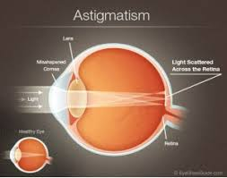 Astigmatism Night Blindness A Definitive Guide To Astigmatism Milan Eye Center