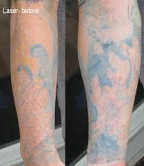 how much does it cost to remove a full sleeve tattoo tattoo