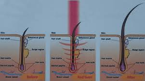 laser hair loss treatment total hair loss solutions