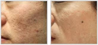 light therapy for acne scars acne treatment raleigh nc synergy spa