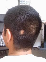 best haircut for alopecia haircuts for men awesome male haircuts short best hair cut ideas