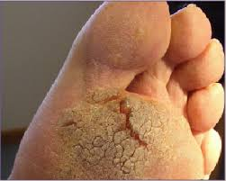 How To Remove Planters Warts by How To Treat Recalcitrant Plantar Warts Podiatry Today