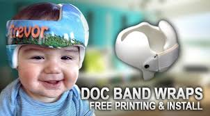 doc band wraps places in the san diego ca area that does doc band wraps