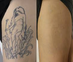 natural tattoo removal dermabrasion tattoo removal the fact