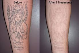 effective ideas of tattoo removal before and after