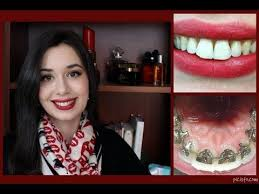 Braces Off Meme - incognito lingual braces treatment final reveal and review youtube