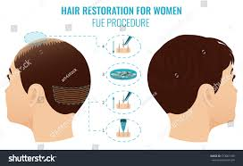 Hair Loss Cure For Women Female Hair Loss Treatment Follicular Unit Stock Vector 573007189