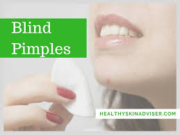 Blind Pimples On Chin How To Get Rid Of Blind Pimples What Causes And How To Treat