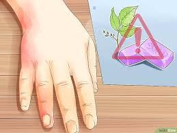 dermite du si e 6 ères de traiter une dermatite wikihow