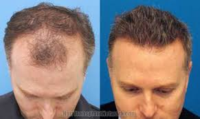 hairstyles for surgery hair transplant surgery before and asfter images with 3865 grafts