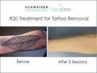 tattoo removal utah cost 84 tattoo laser removal cost ideas on tatto men tatto