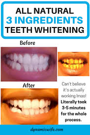 3 minute instant teeth whitening with 3 natural ingredients before