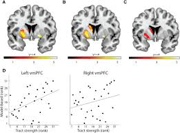human choice strategy varies with anatomical projections from