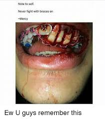 Braces Memes - note to self never fight with braces on mercy ew u guys remember