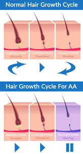 new hair growth discoveries man with alopecia totalis regrows hair develops receding hairline