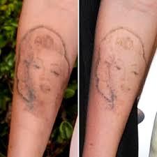 cleveland laser tattoo removal information u0026 cost should i tattoo
