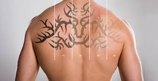 demand laser tattoo removal atlanta ga