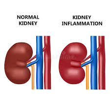 healthy kidney and kidney infection stock vector image 69533193