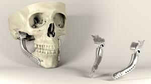 3d Medical Software Sebastiaan Deviaene Designs Medical Implants Using Video Game