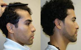 different types of receding hairlines receding hairline restored even for young people