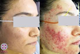 Face Mapping Acne Cystic Acne Treatment Laser Treatments For Acne
