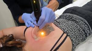 how effective is picosure tattoo removal part 1 lifehacker