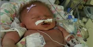 Challenge Herpes Snopes Baby Dies After She Likely Contracted Virus Through A