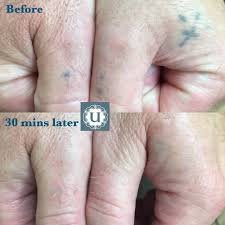 how much is tattoo removal in ireland best tattoo 2017