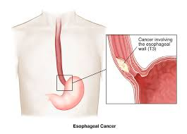 Esophagus And Stomach Anatomy Cancer Of The Esophagus Brigham And Women U0027s Hospital