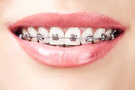 26 stages braces