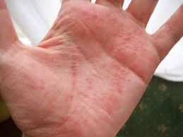itchy bumps on hands that spread blisters on hands pictures causes treatment