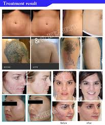 stationary style picosecond laser q switched nd yag laser tattoo