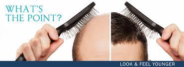 hair science robotic hair transplant