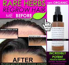 best organic hair regrowth treatment hair loss thinning dandruff