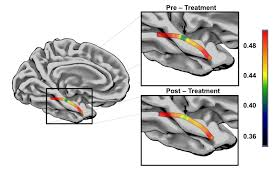 recovery via speech therapy related to structural plasticity of