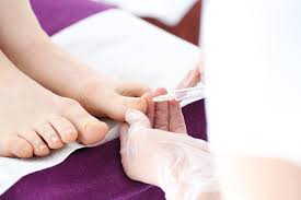 houston urgent care doctor explains the treatment for ingrown nails