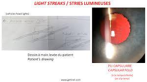 light streaks after cataract surgery light streaks capsular fold docteur damien gatinel