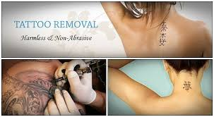 28 natural ways on how to remove tattoos at home fast page 3