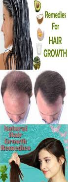 home remedies for hair loss for over 50 you will need coconut oil 100 ml mustard oil 100 ml castor oil