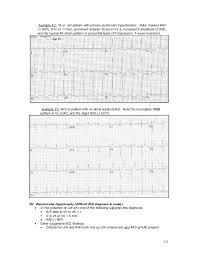 strain pattern ecg meaning ecg
